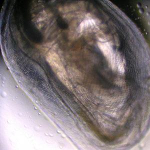 Water Flea (magnified 100x)
